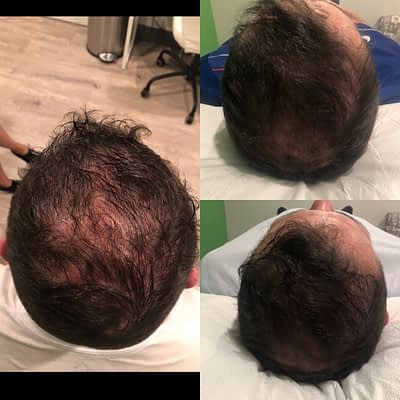 1544049214 0 main PRPHairGrowthInjectionTherapyResults PRP Hair Growth Injection Therapy Bay Wellness